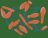 Gıdalarda Mikrobiyolojik Bozulmalar